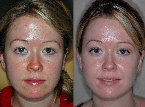 tca chemical peel. Vi Peel before and after